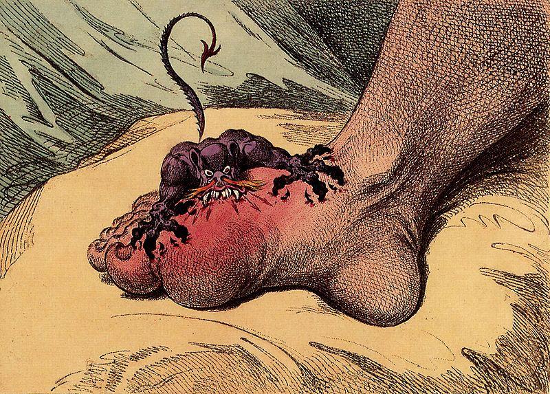 que es el acido urico en orina pie inflamado acido urico que infusiones son buenas para bajar el acido urico