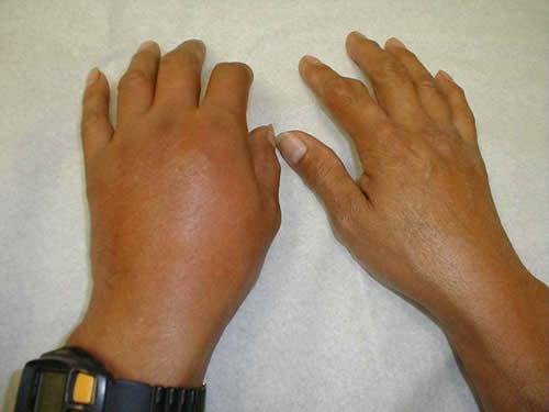 acido urico chocolate tomate de arbol contiene acido urico acido urico en los pies de ninos
